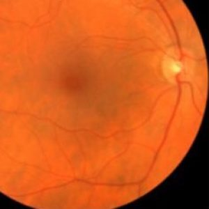 Can eye health tests diagnose other health issues? Yes.