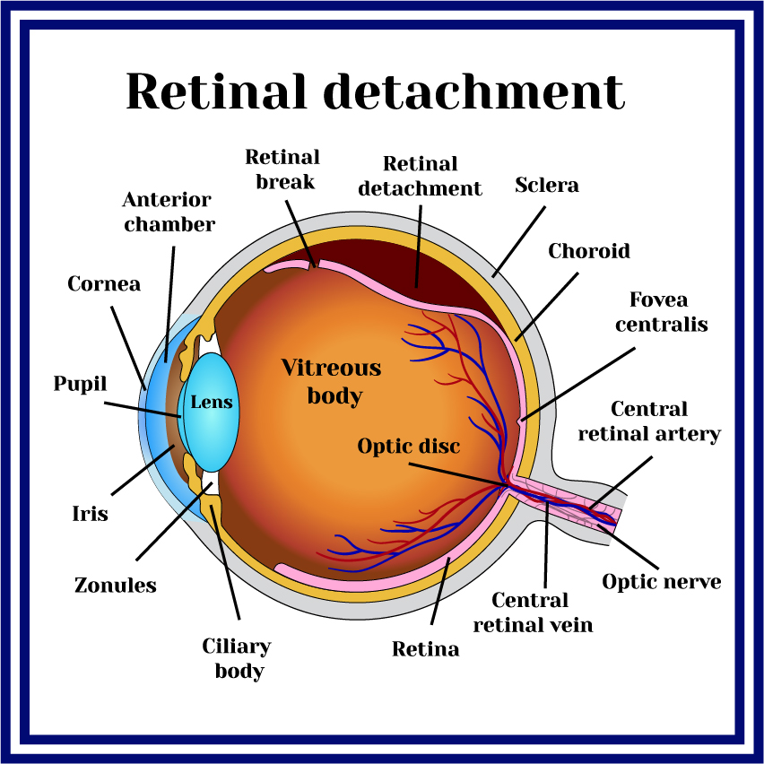 Retinal detachment or tear is when the retina pulls away from the Ciliary body of the eye.