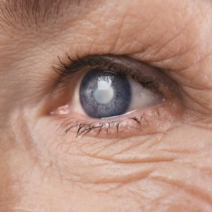 Cataracts in the eye of an older woman