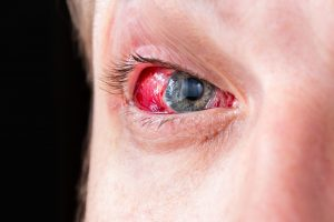A man's blue eye is apple red and raw looking due to a fireworks injury.