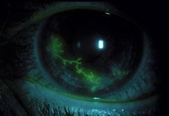 An eye with green dye in it highlights Herpes on the lens of the eye.