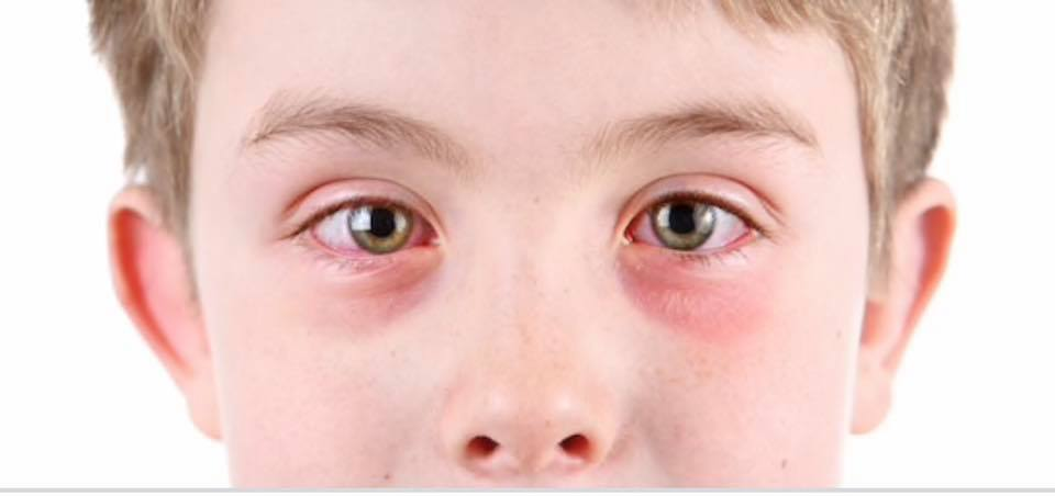 A young boy with pink eye also known as conjunctivitis.