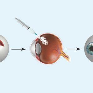 A syringe fills a cut in an eyeball with glue.