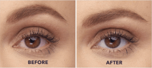lumify eye drops before and after