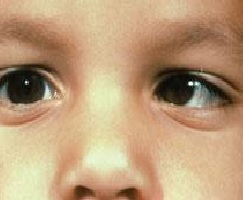"A close up view of a child's ""lazy eye"" also known as, strabismus."
